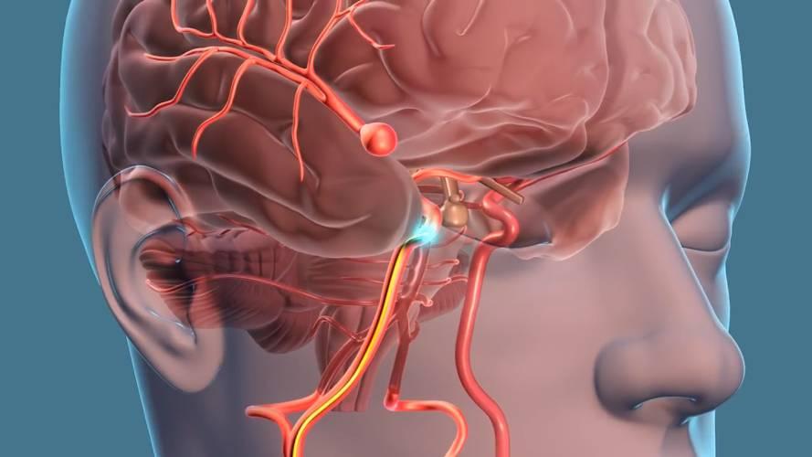Cirugía cerebrovascular